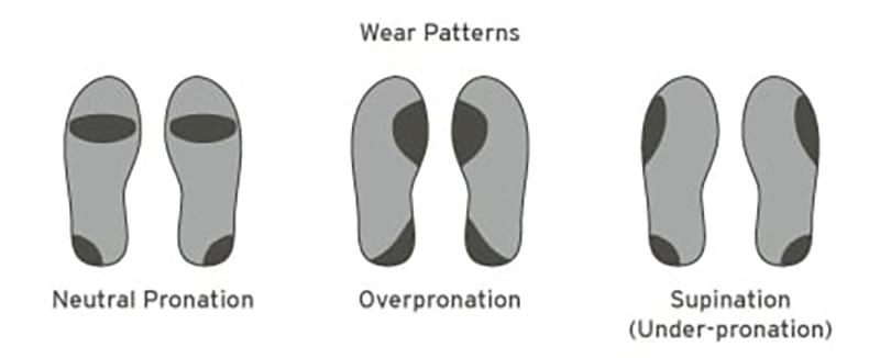 Các kiểu bàn chân phổ biến hiện nay