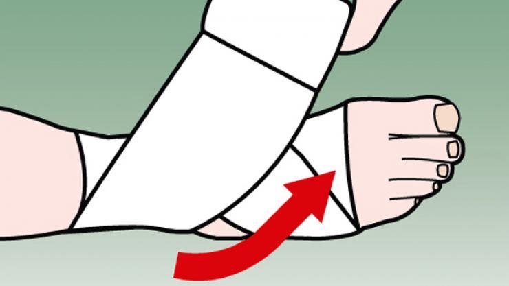 Hướng dẫn hỗ trợ bảo vệ cổ chân với băng cuốn thể thao